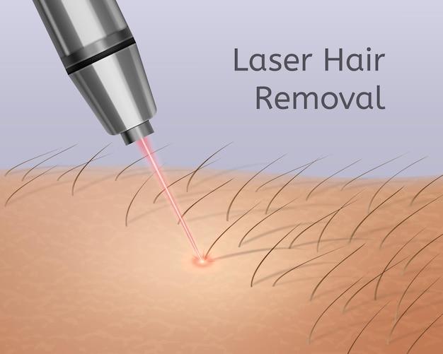 Ilustração realista de depilação a laser nas pernas Vetor Premium