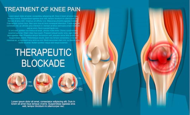 Ilustração realista de tratamento da dor no joelho Vetor Premium