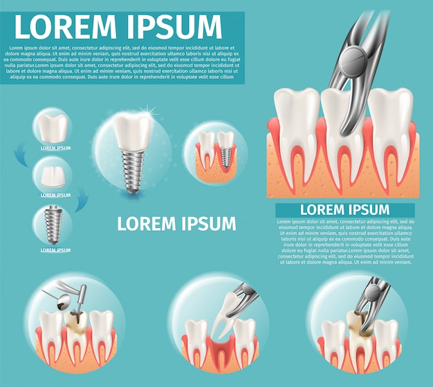 Ilustração realística infográfico dental surgeron Vetor Premium