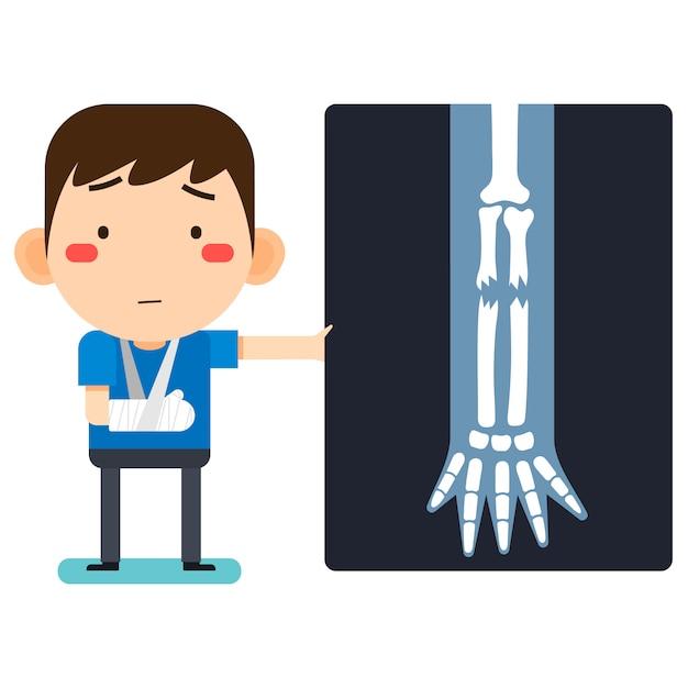 Ilustração vetorial, personagem de homem paciente cute cartoon bonito quebrado braço direito em bandagem de gesso ou braço estampado Vetor Premium