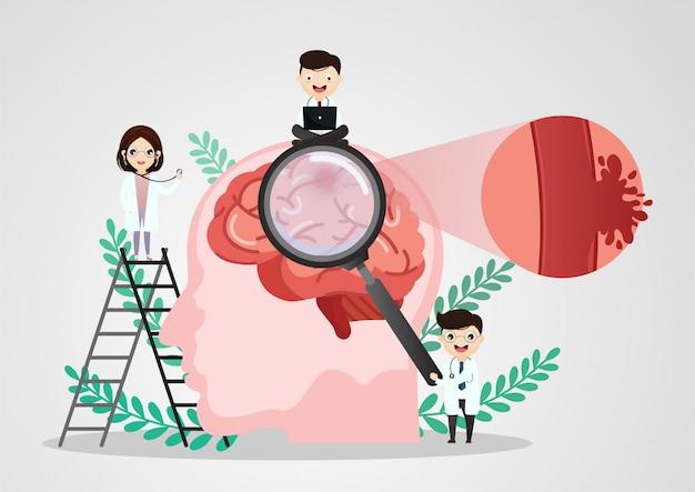 Ilustrações médicas científicas de acidente vascular cerebral humano Vetor Premium