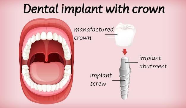 Implante dentário com coroa Vetor grátis