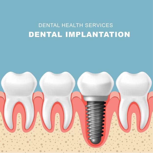 Implante dentário - fileira de dentes na gengiva com implante Vetor Premium