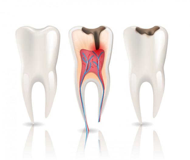 Infecção por cáries no esmalte e dente de saúde Vetor Premium