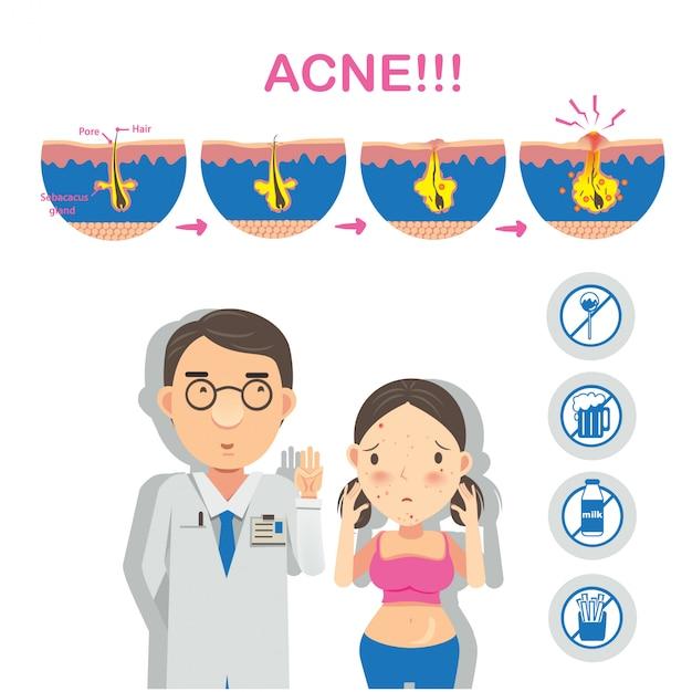 Infografia de formação de acne Vetor Premium