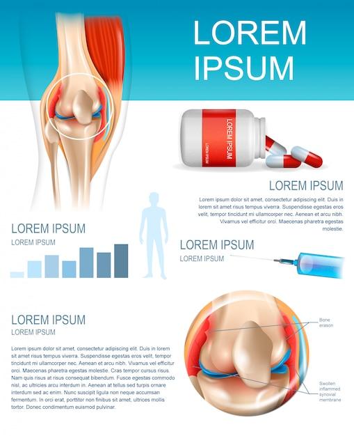 Infográfico tratamento artrite reumatóide Vetor Premium