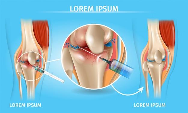 Injeção para osteoartrite do joelho medical chart Vetor Premium