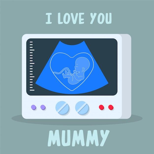 Máquina de diagnóstico ultra-sônico com embrião na tela Vetor Premium