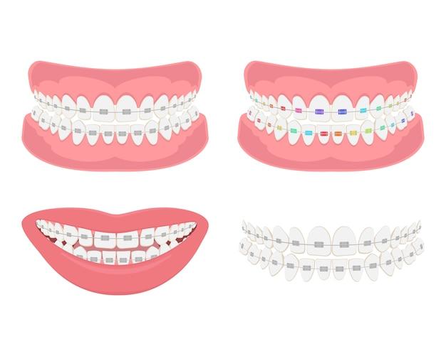 Maxilar dental com aparelho, mordida correta da dentição. Vetor Premium