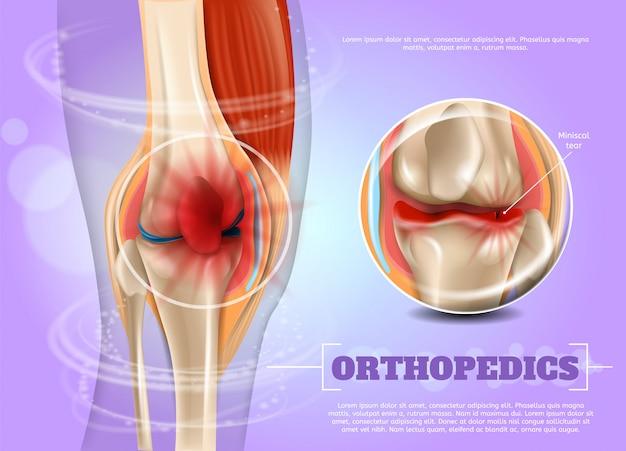 Medicina de ortopedia ilustração realista em 3d Vetor Premium
