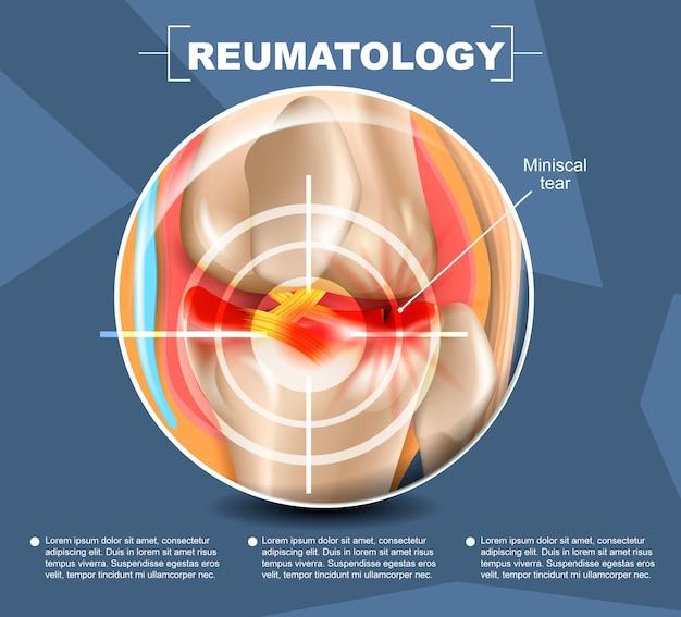 Medicina de reumatologia de ilustração realista em 3d Vetor Premium