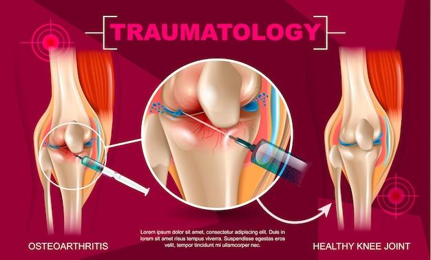 Medicina de traumatologia de ilustração realista em 3d Vetor Premium