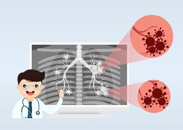 Médico mostrando raio-x dos pulmões Vetor Premium