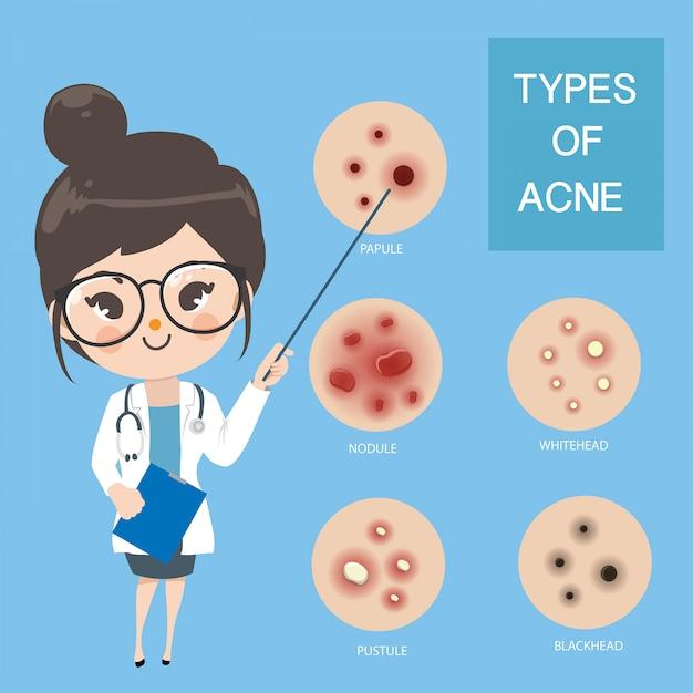 Médicos recomendam tipo de acne. Vetor Premium