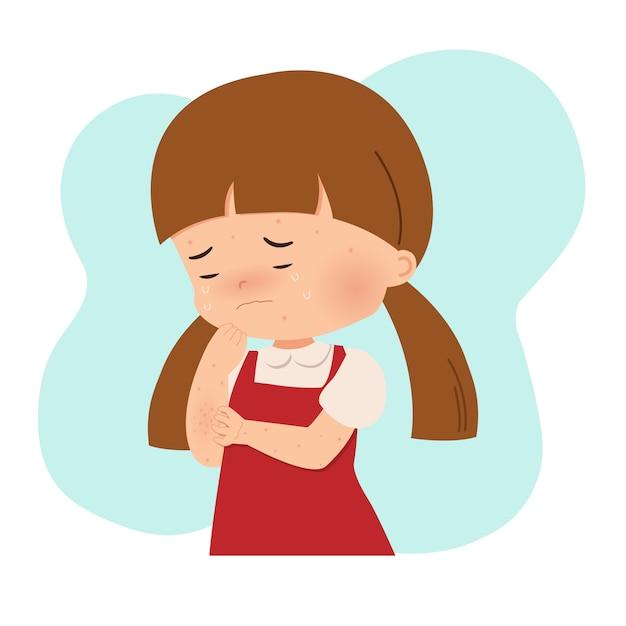 Menina coçando as mãos por causa de alergia. varicela, espinhas, acne, varicela. infecção viral contagiosa. vetor de estilo plano isolado no branco. Vetor Premium