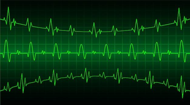 Monitor de pulso cardíaco verde com sinal. onda de batimento cardíaco Vetor Premium