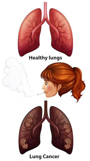 Mulheres fumando com pulmões saudáveis e com câncer Vetor grátis