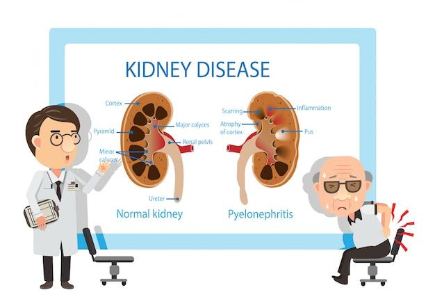 Pacientes e médicos visualizando diagramas pielonefrite Vetor Premium