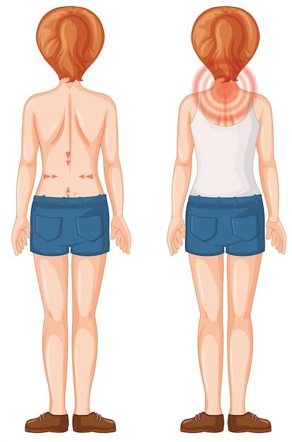 Parte traseira do humano feminino com manchas de dor Vetor grátis