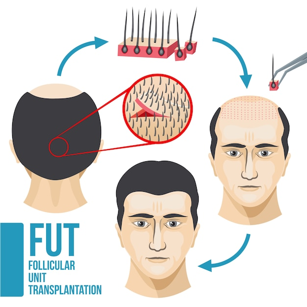 Perda de cabelo masculino tratamento médico vector infográfico Vetor Premium