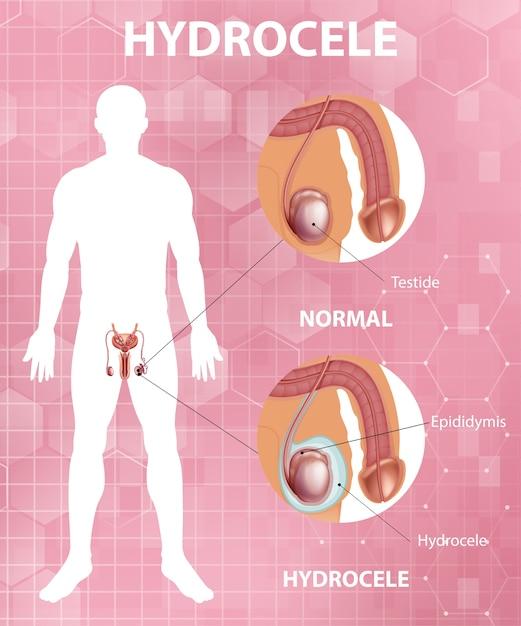 Pôster médico mostrando diferença entre testículo normal masculino e hidrocele Vetor grátis