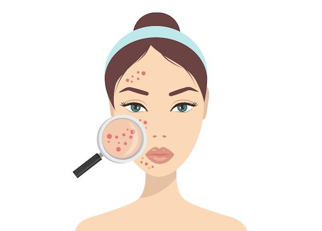 Problemas de pele acne. mulher que guarda a lupa para olhar a acne cística nela facial. ilustração vetorial sobre o conceito de problema de pele Vetor Premium