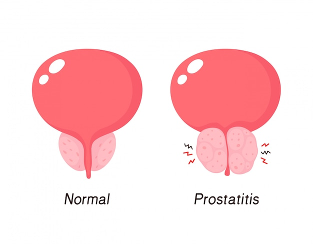 Prostatitis 40 aniversario