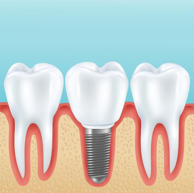 Próteses dentárias com dentes saudáveis Vetor grátis