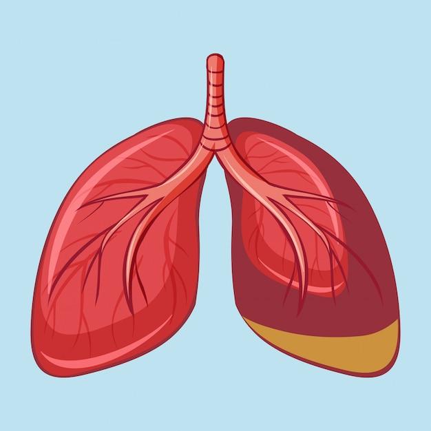 Pulmão humano com mesotelioma pleural Vetor grátis