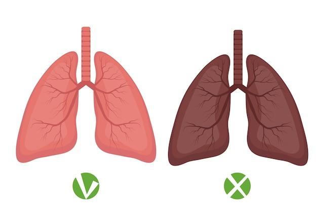 Pulmões saudáveis e doença pulmonar ou infográficos do fumante isolados no fundo branco. Vetor Premium