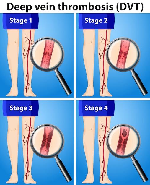 Quatro estágios da trombose venosa profunda Vetor Premium