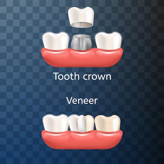 Realistic illustration coroa dentária, venner Vetor Premium