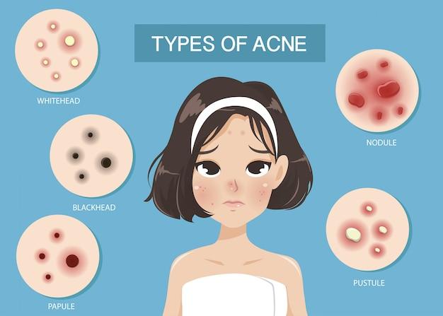 Tipos de acne Vetor Premium