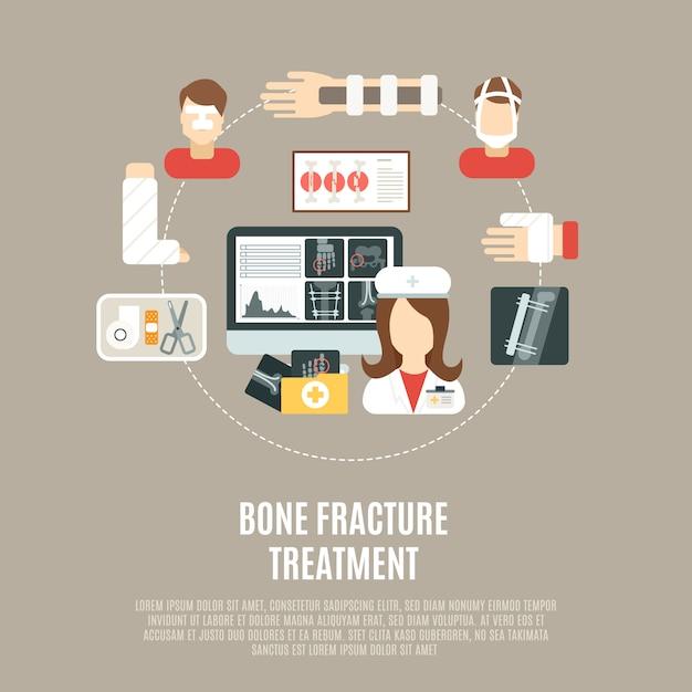 Tratamento ósseo de fratura Vetor grátis