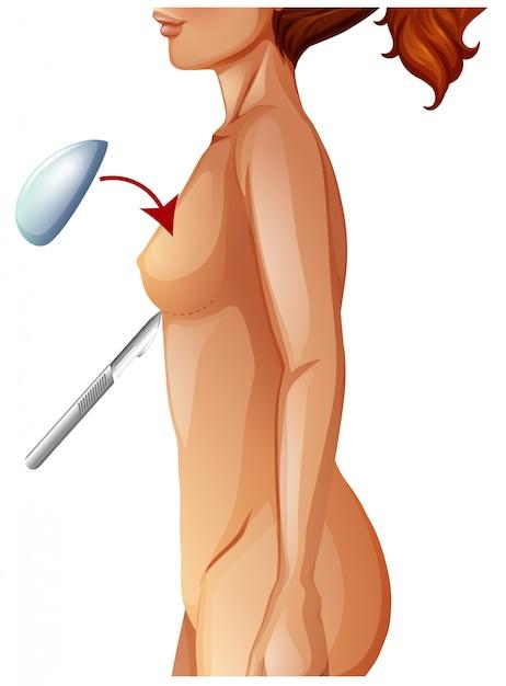 Um aumento da mama anatomia humana Vetor grátis