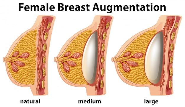 Um conjunto de aumento de mama feminina Vetor grátis