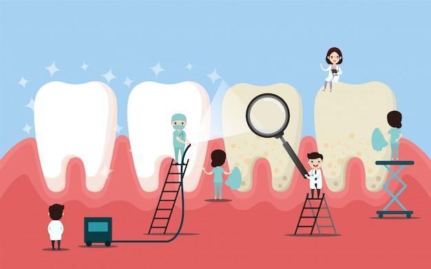 Um grupo de pequenos dentistas está cuidando de um dente grande. ilustração do vetor de personagem dental. Vetor Premium