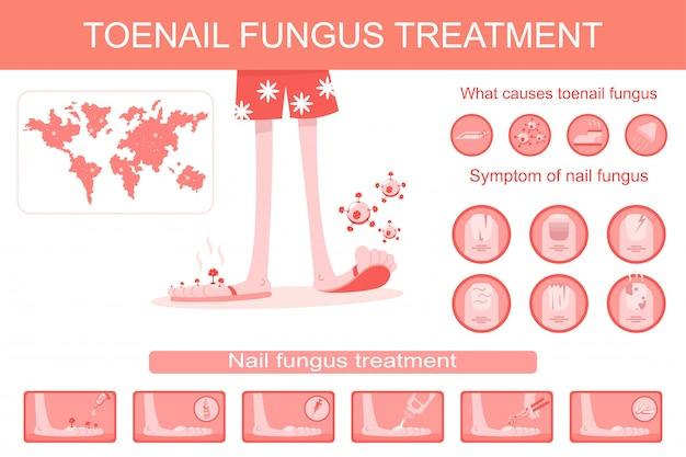 Unha fungo tratamento infográficos médicos. ilustração plana dos desenhos animados de infecção, sintomas e terapia de unha e parar a doença. Vetor Premium