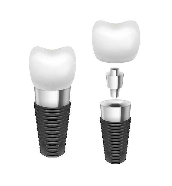 Vector metal desmontado vista lateral do implante dentário isolado no fundo branco Vetor grátis