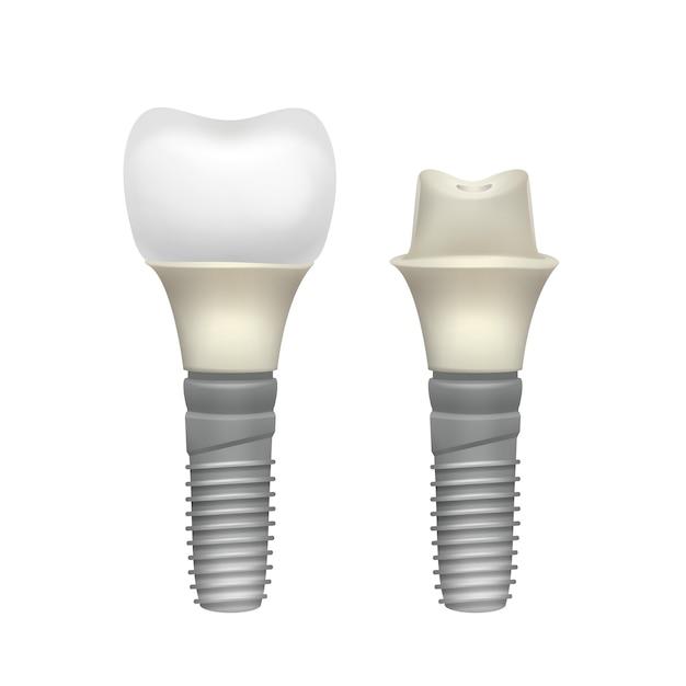 Vista lateral do implante dentário montado de plástico de vetor isolada no fundo branco Vetor grátis