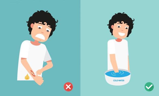 Bruciatura della pelle di trattamento di emergenza del pronto soccorso di modi giusti e giusti, illustrazione Vettore Premium
