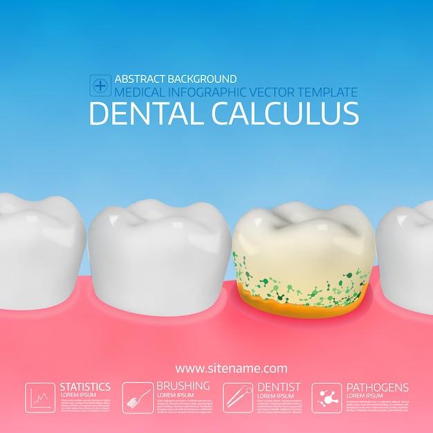 Calcolo dentale con batteri. Vettore Premium