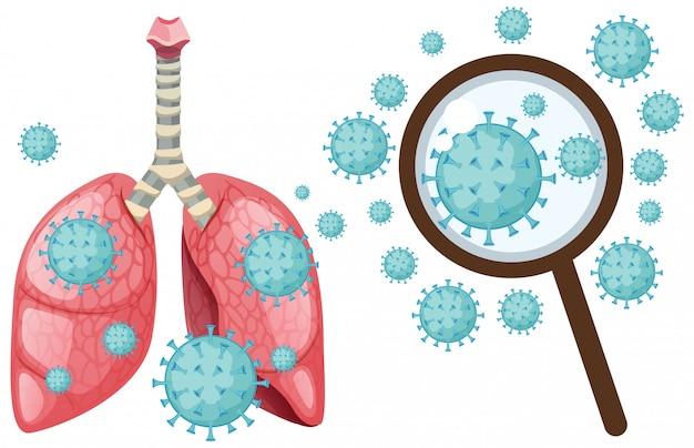 Cellula di coronavirus nei polmoni umani su bianco Vettore Premium