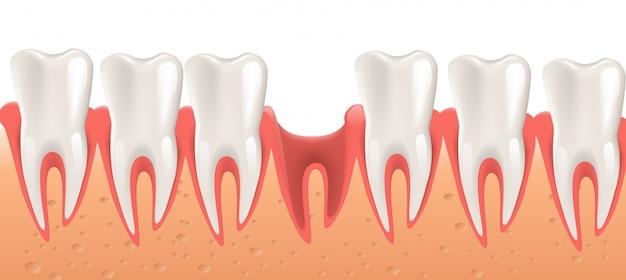 Chirurgia dentale dell'illustrazione realistica nel vettore 3d Vettore Premium