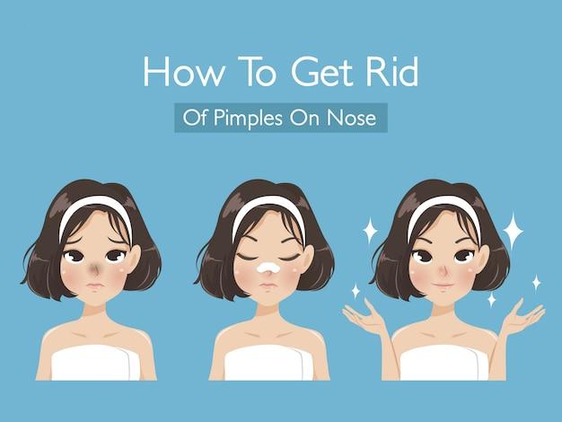 Come sbarazzarsi di punti neri sul naso della ragazza per rendere la pelle più bella e giovane. Vettore Premium