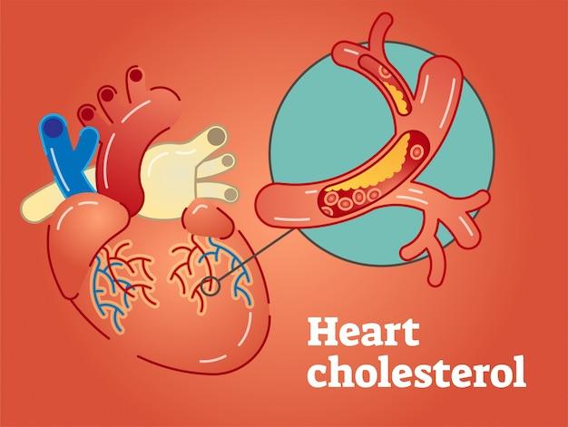Concetto di colesterolo di cuore Vettore Premium