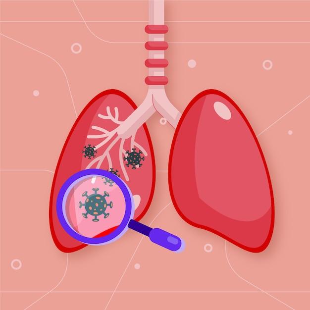 Concetto di polmonite da coronavirus Vettore gratuito
