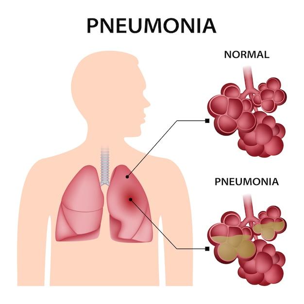 Concetto di polmonite Vettore Premium