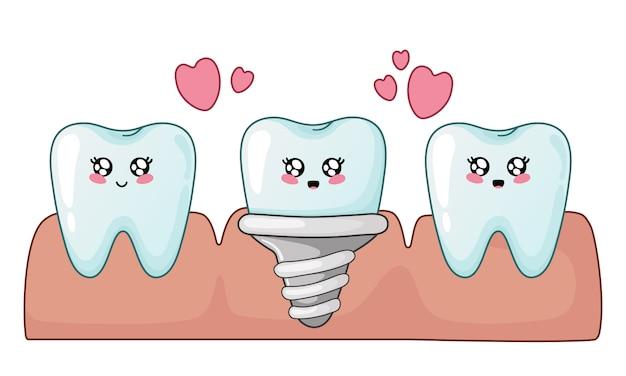 Denti sani del fumetto di kawaii e impianto dentale Vettore Premium