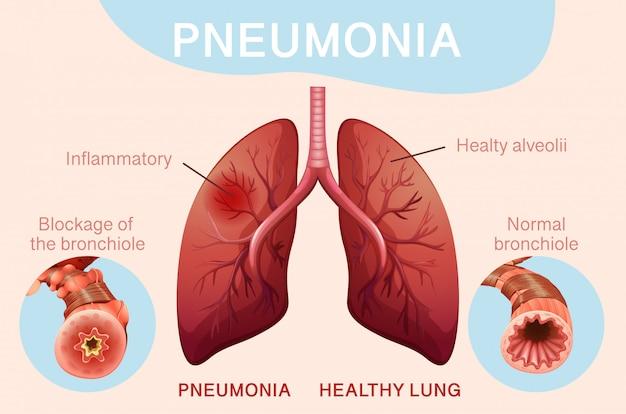 Design del poster per polmonite con polmoni umani Vettore gratuito